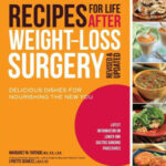 Recipes For Life After Weight Loss Surgery, Revised And …